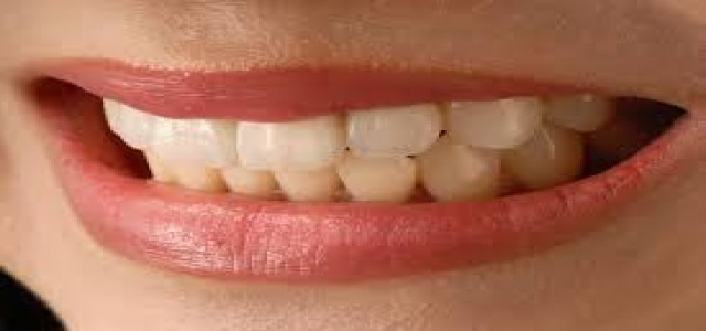 Europe  Dental Implants  Market 2018 by Upcoming Challenges, Opportunities and Drivers Forecast to 2024