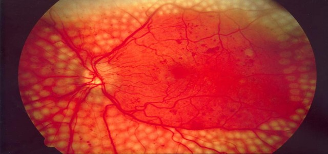 Diabetic Retinopathy Market Future Scope, Demands and Projected Industry Growths to 2024